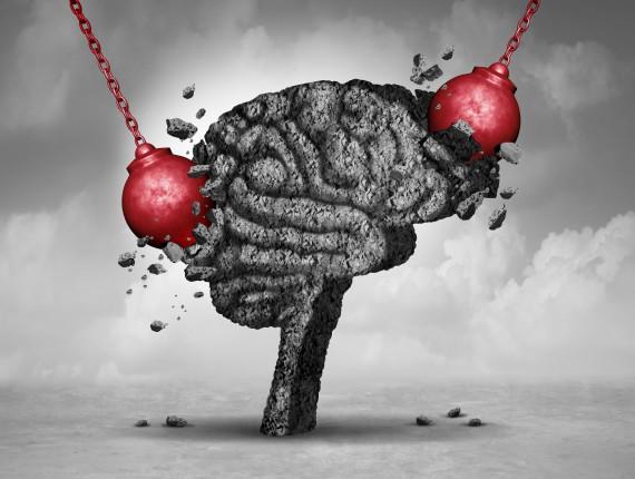 mozg-bol