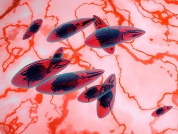 toxoplazma